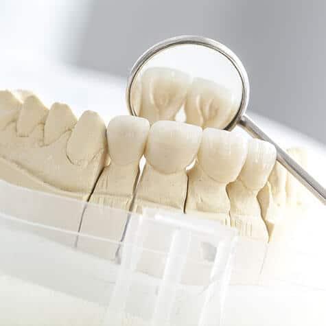 Icon Ästhetischer Zahnersatz