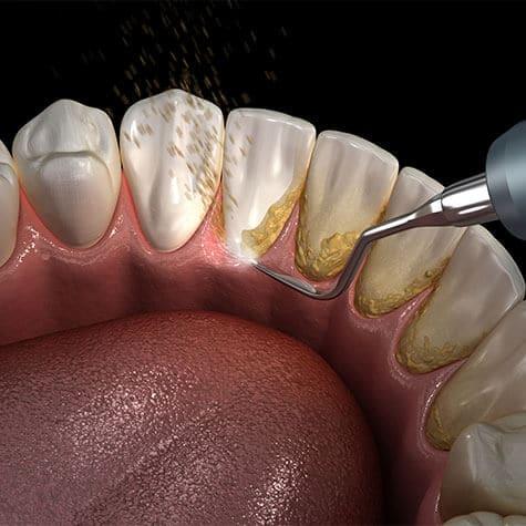 Icon Parodontologie